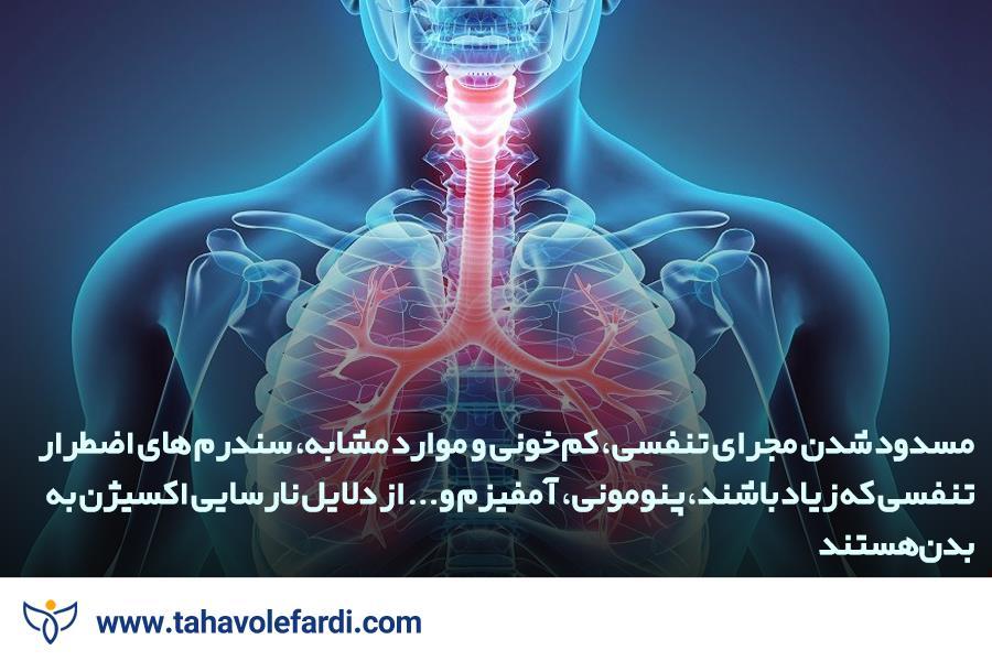 نارسایی اکسیژن